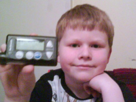 Lance And His Insulin Pump.